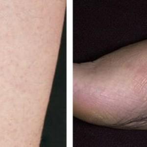 Терапия при поражении кожных покровов