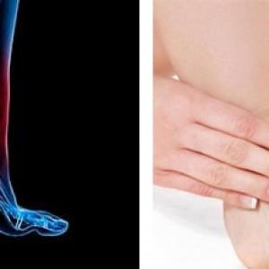 Терапия при травмах голеностопа