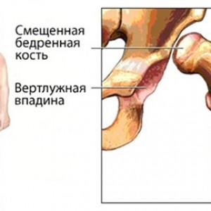 Травма ТБС у ребенка