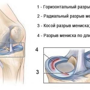 Травма мениска