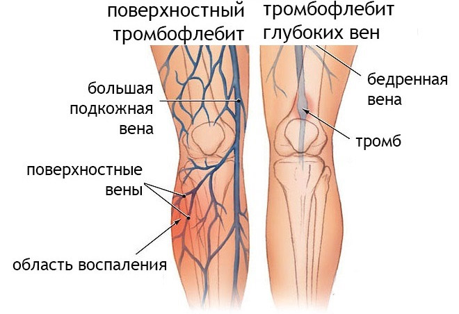 Тромбоз вен в ногах