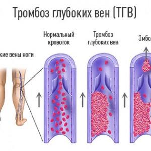 Тромбоз вен