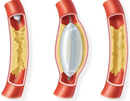Что такое ангиопластика сосудов