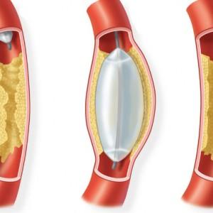 Что такое ангиопластика