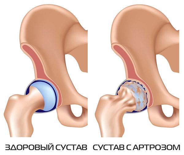 Что такое коксартроз