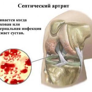 Что такое септический артрит