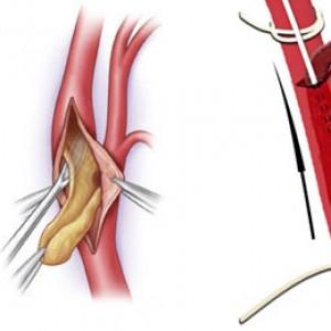 Что такое тромбэктомия