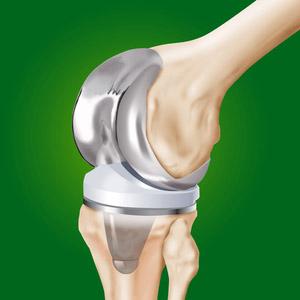 Что такое эндопротезирование сустава колена