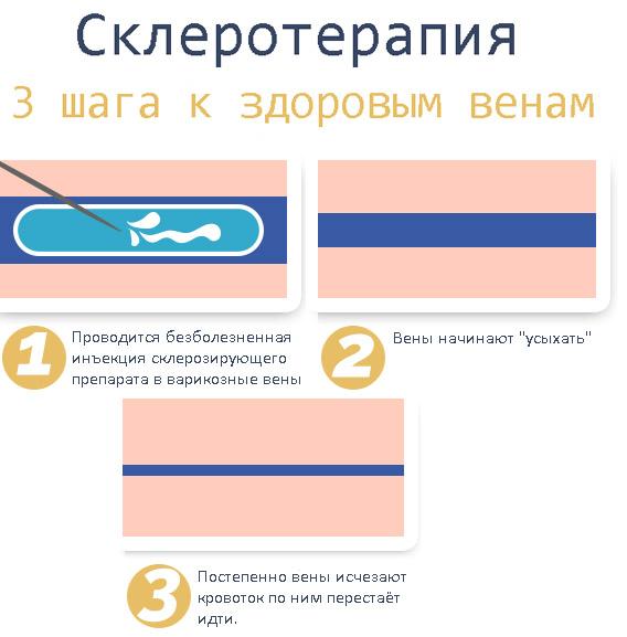 Эффективность склеротерапии